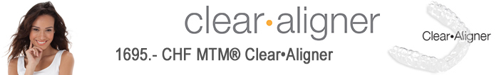 MTM Clear Aligners