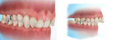 Fees And Insurance - Orthodontics
