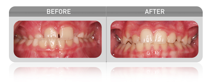 proven results - crossbite case 01