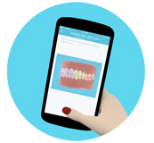 Orthodontic monitoring over your smartphone