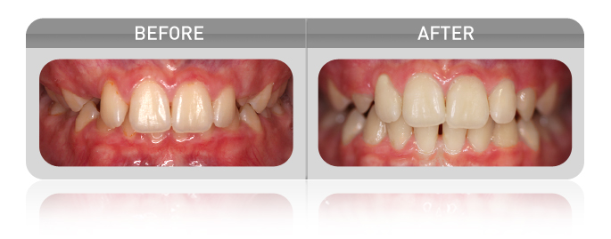 proven results - overbite case 02